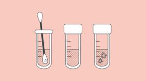 Tamponi molecolari: cosa sono e come vengono processati?